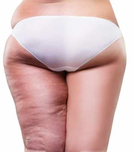 What-is-Cellulite-448x510